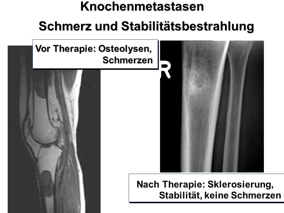 Knochenmetastasen Schmerz und Stabilitätsbestrahlung