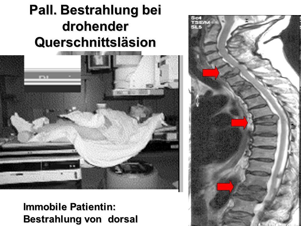 Pall. Bestrahlung bei drohender Querschnittsläsion