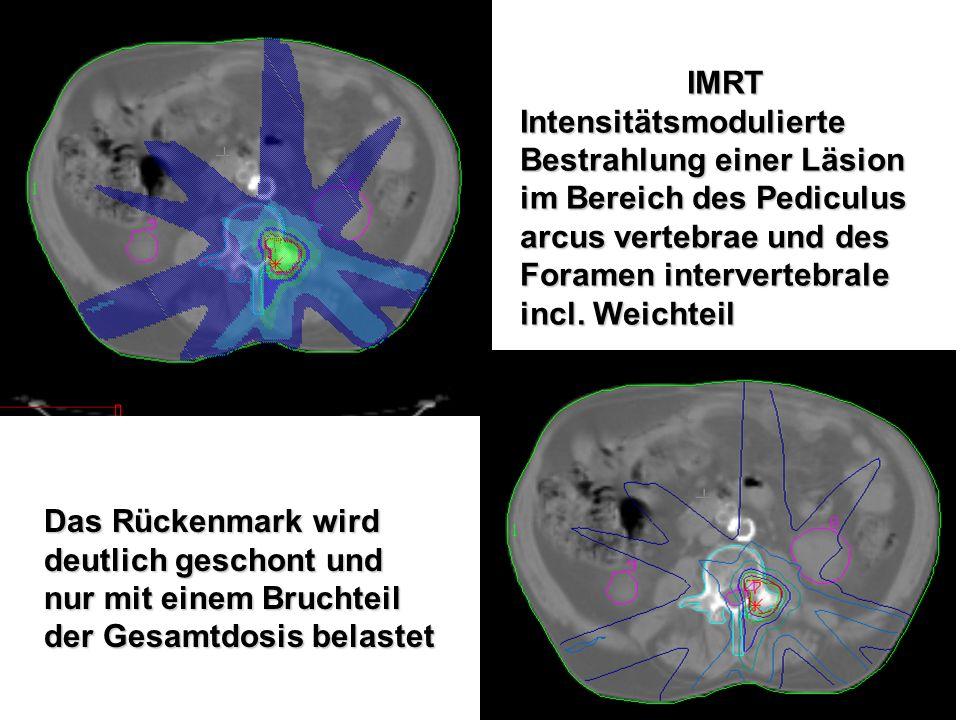 IMRT Intensitätsmodulierte. Bestrahlung einer Läsion im Bereich des Pediculus arcus vertebrae und des Foramen intervertebrale incl. Weichteil.