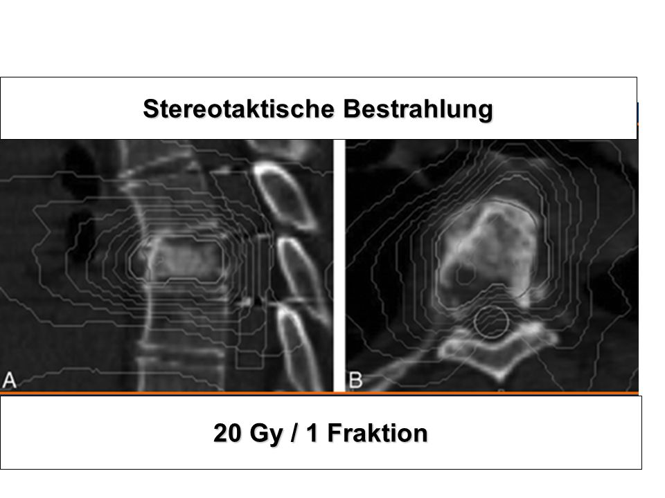 Stereotaktische Bestrahlung