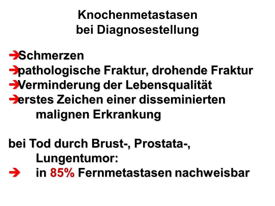 Knochenmetastasen bei Diagnosestellung