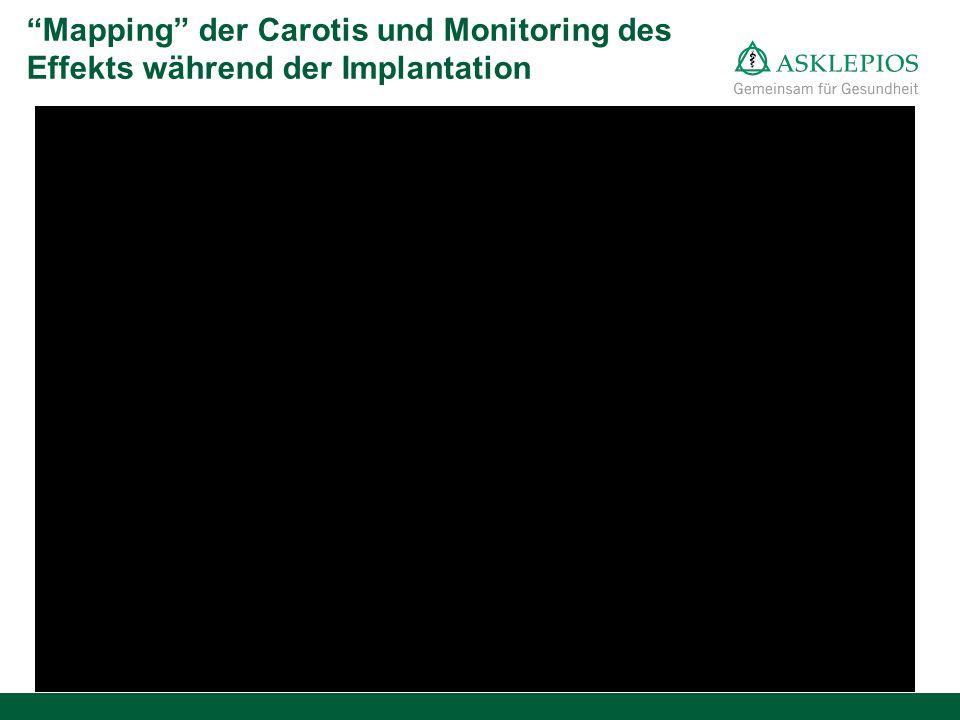 Mapping der Carotis und Monitoring des Effekts während der Implantation