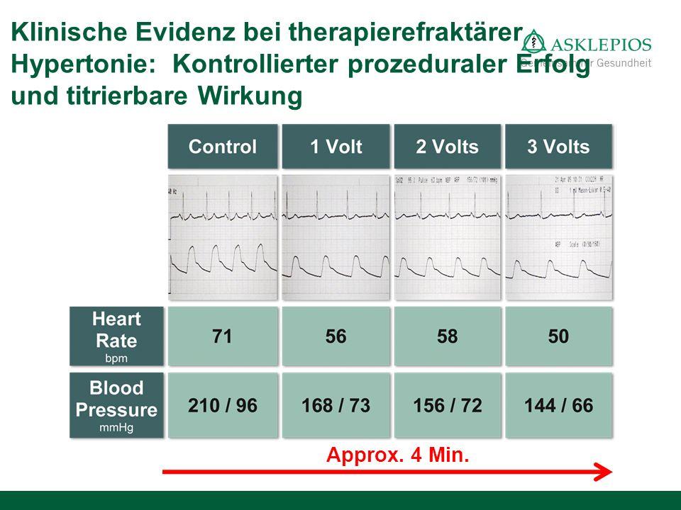 Klinische Evidenz bei therapierefraktärer Hypertonie: Kontrollierter prozeduraler Erfolg und titrierbare Wirkung
