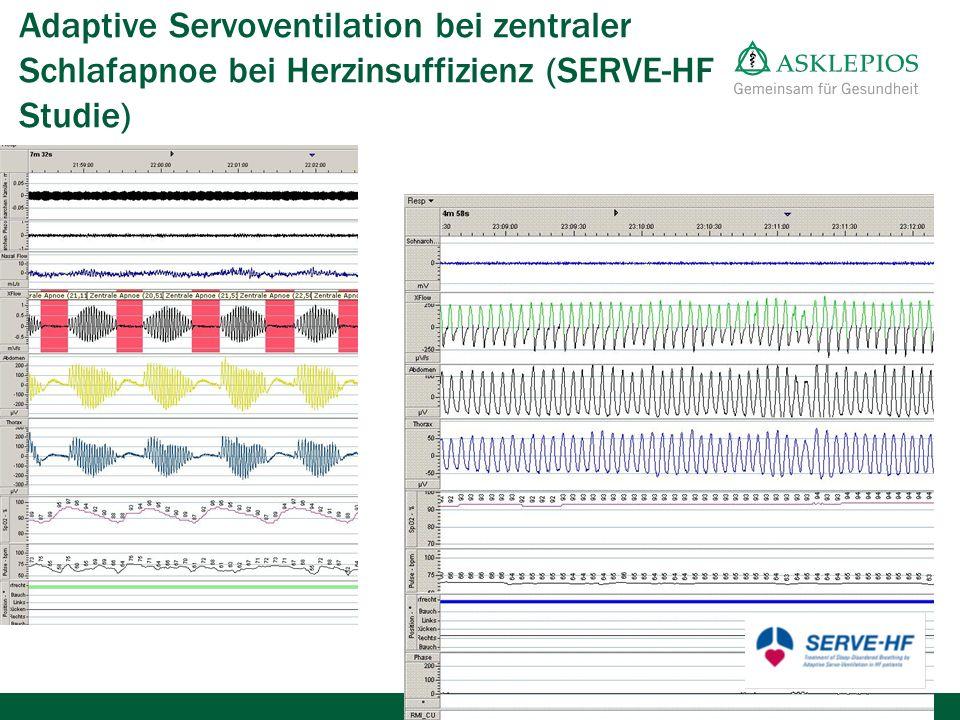 Adaptive Servoventilation bei zentraler Schlafapnoe bei Herzinsuffizienz (SERVE-HF Studie)