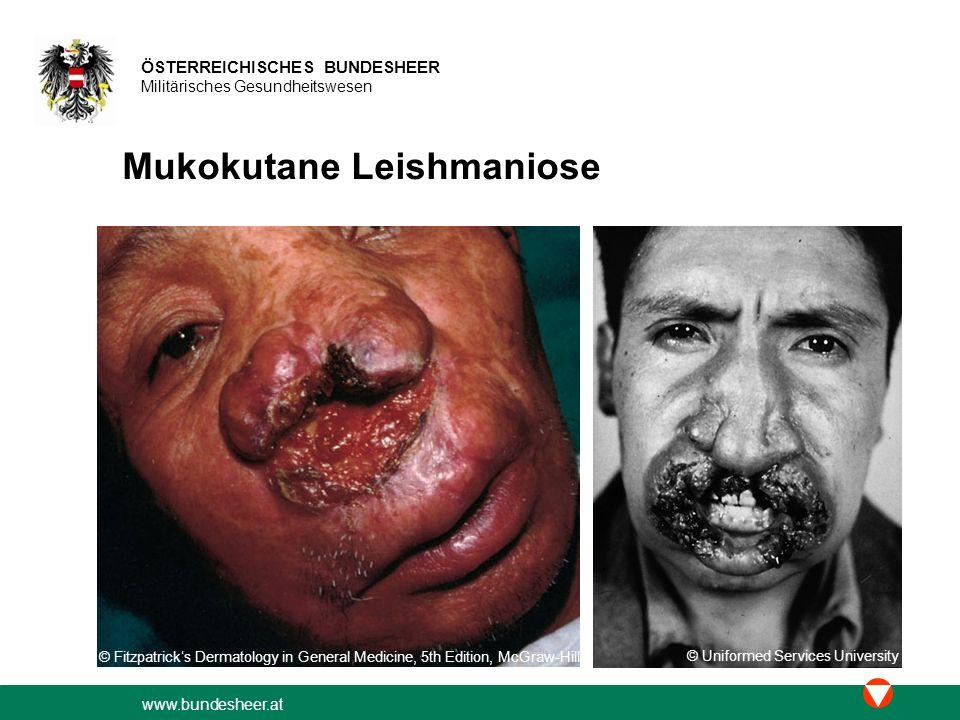 Mukokutane Leishmaniose