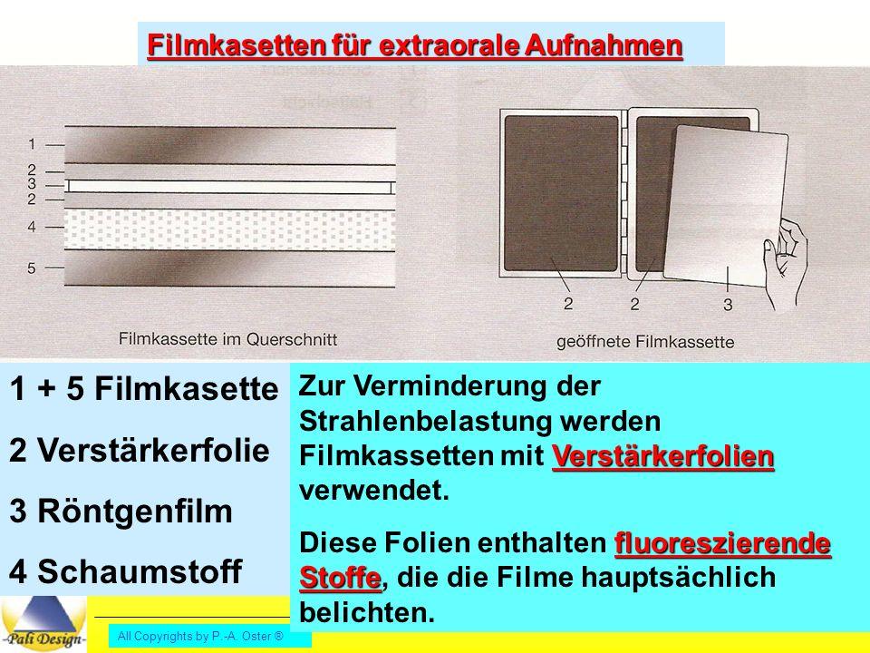 1 + 5 Filmkasette 2 Verstärkerfolie 3 Röntgenfilm 4 Schaumstoff