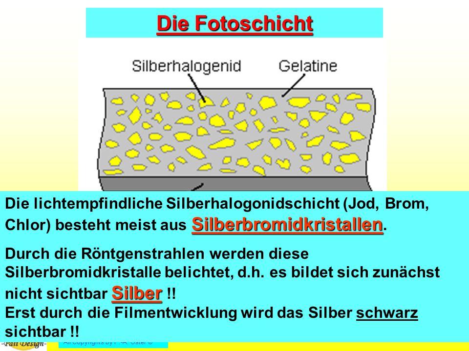 Die Fotoschicht Die lichtempfindliche Silberhalogonidschicht (Jod, Brom, Chlor) besteht meist aus Silberbromidkristallen.