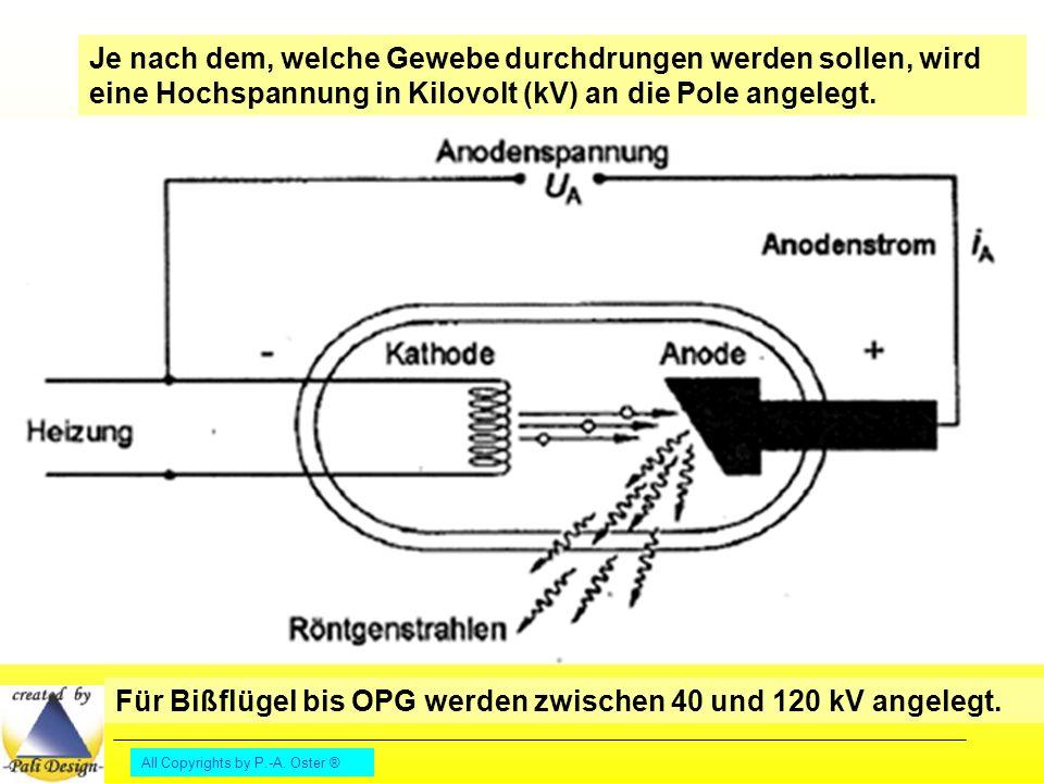 Für Bißflügel bis OPG werden zwischen 40 und 120 kV angelegt.