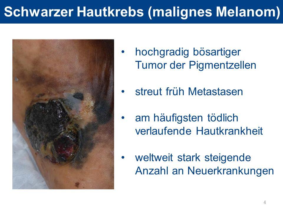 Schwarzer Hautkrebs (malignes Melanom)