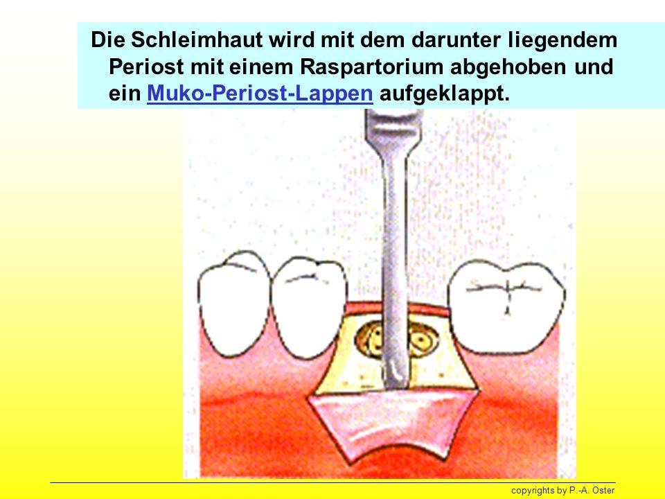 Die Schleimhaut wird mit dem darunter liegendem Periost mit einem Raspartorium abgehoben und ein Muko-Periost-Lappen aufgeklappt.