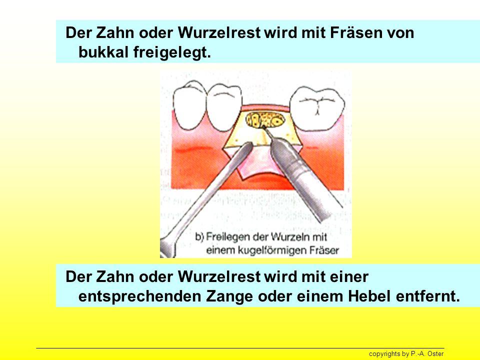 Der Zahn oder Wurzelrest wird mit Fräsen von bukkal freigelegt.