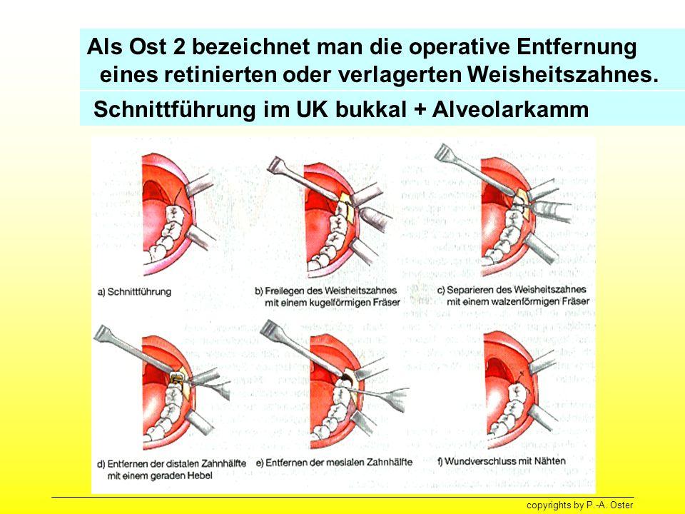 Schnittführung im UK bukkal + Alveolarkamm