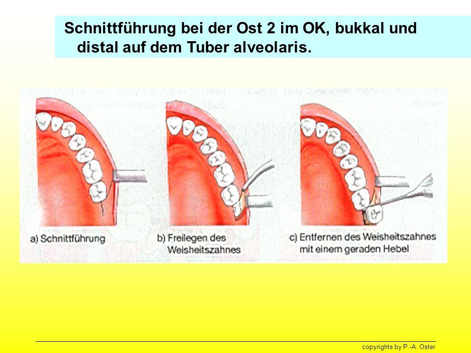 Schnittführung bei der Ost 2 im OK, bukkal und distal auf dem Tuber alveolaris.