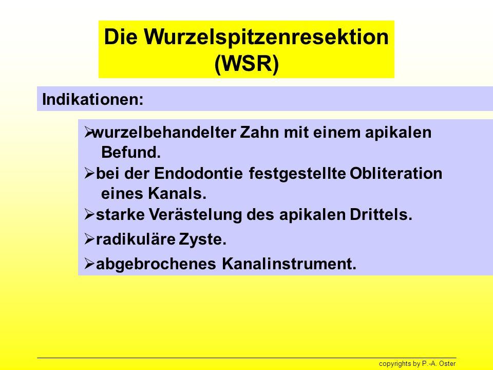 Die Wurzelspitzenresektion (WSR)