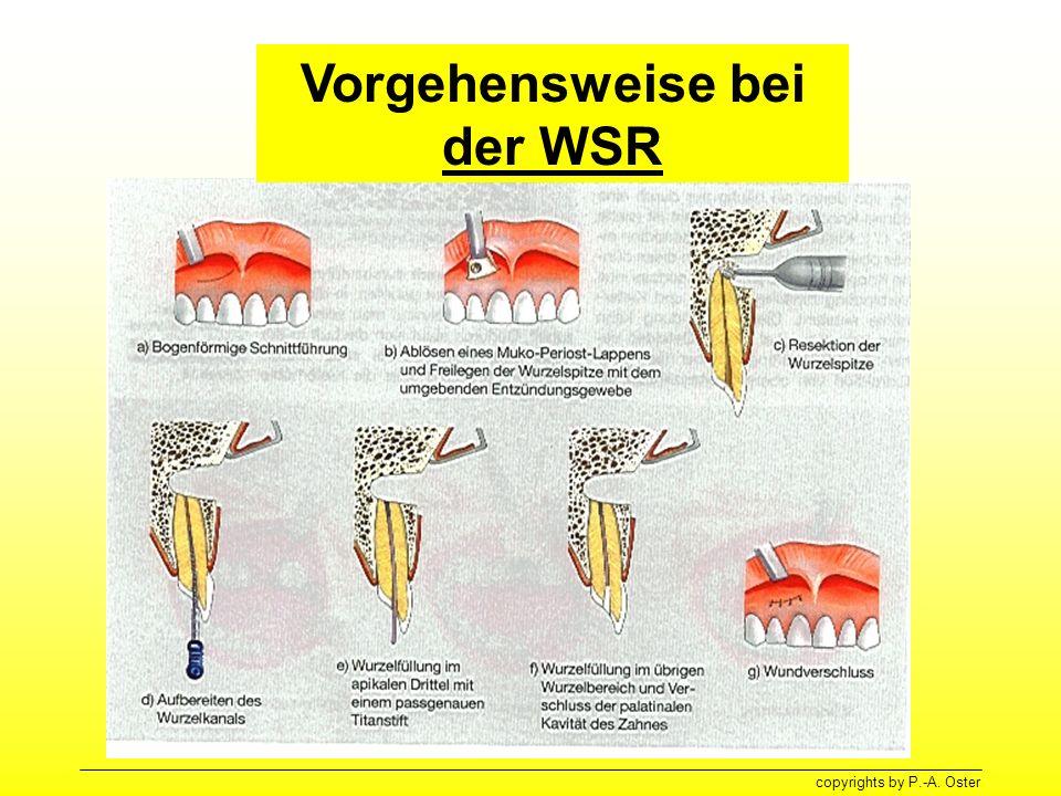 Vorgehensweise bei der WSR