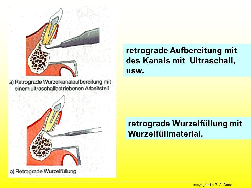 retrograde Aufbereitung mit des Kanals mit Ultraschall, usw.