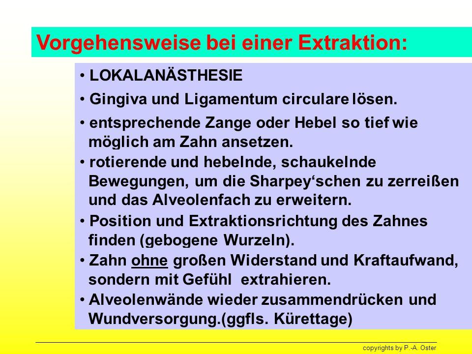 Vorgehensweise bei einer Extraktion: