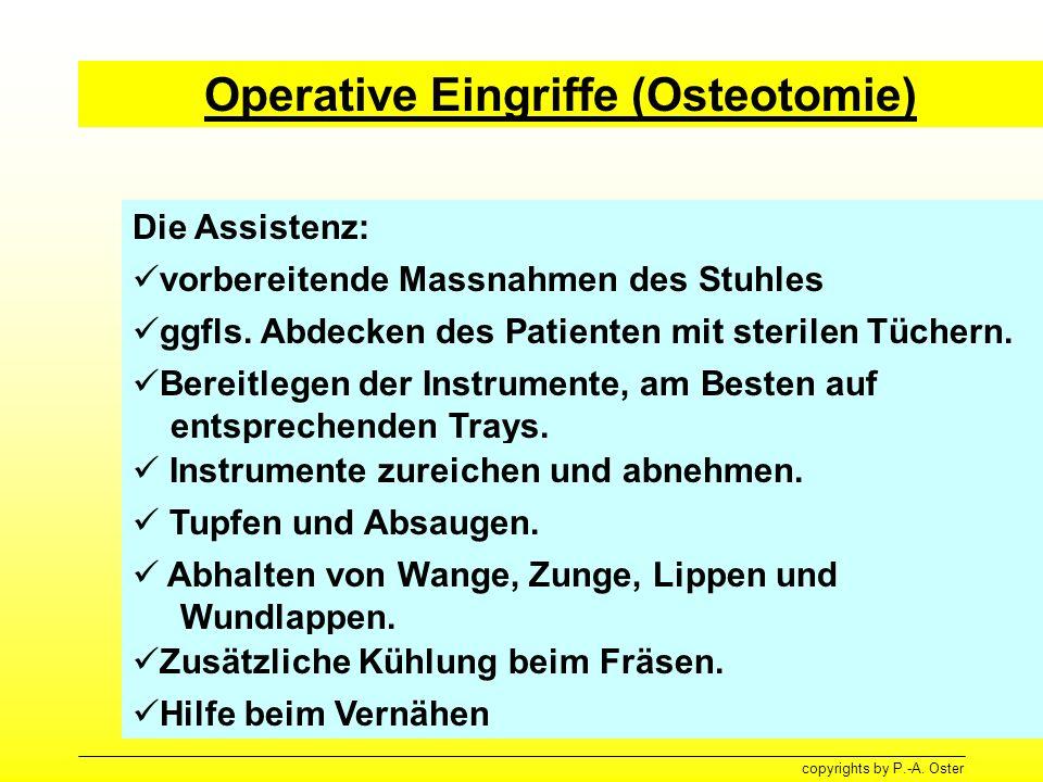 Operative Eingriffe (Osteotomie)
