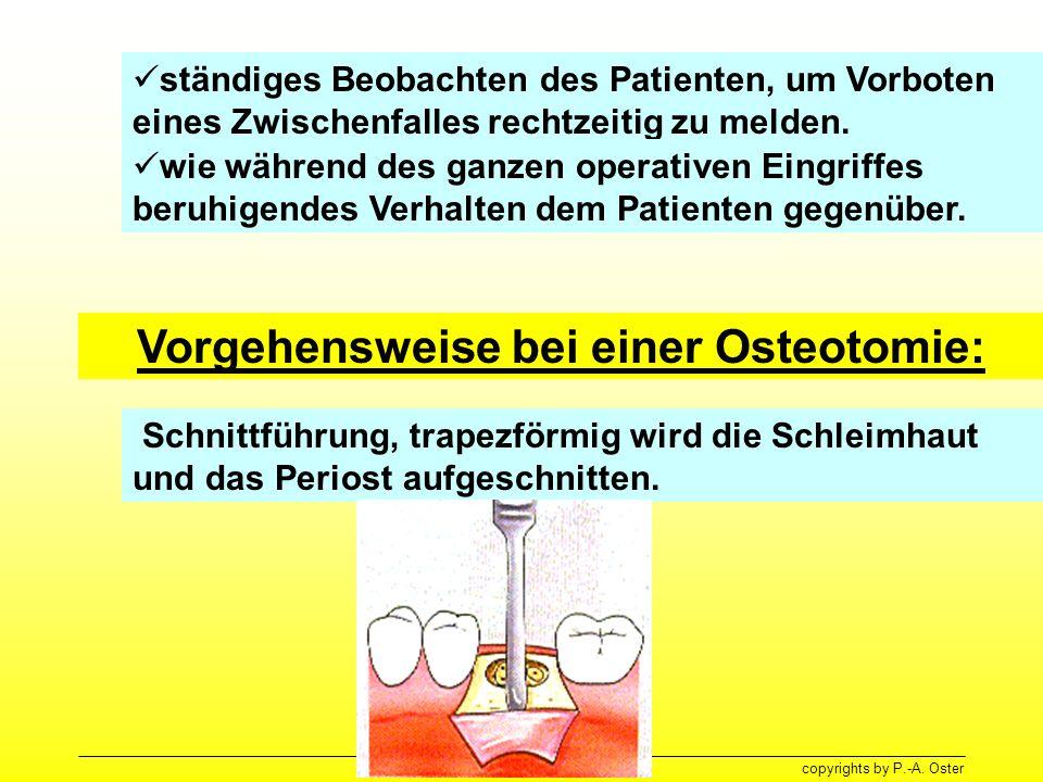 Vorgehensweise bei einer Osteotomie: