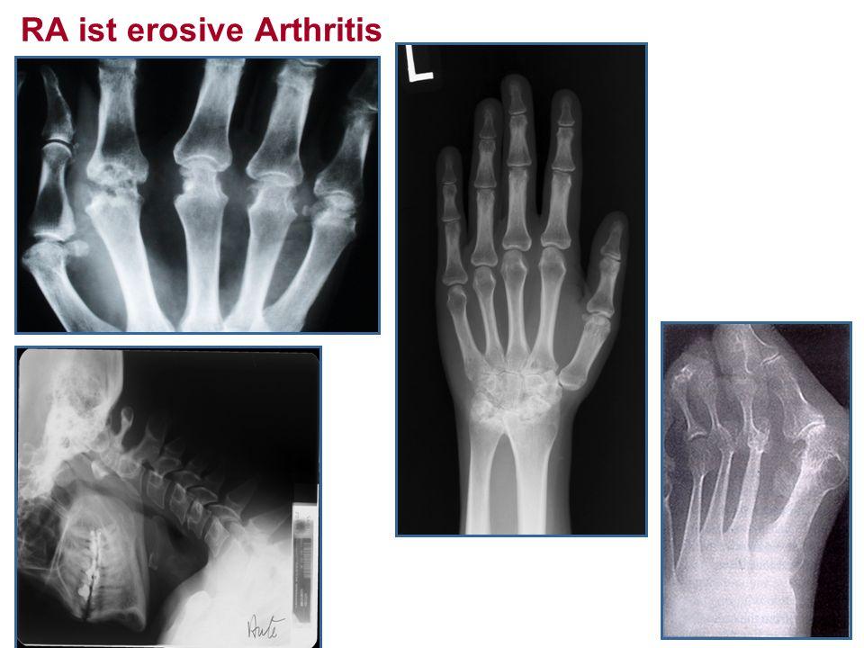 RA ist erosive Arthritis