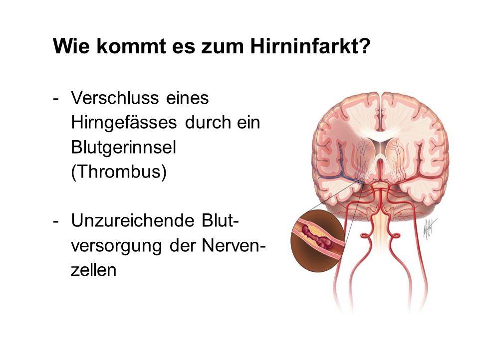 Wie kommt es zum Hirninfarkt
