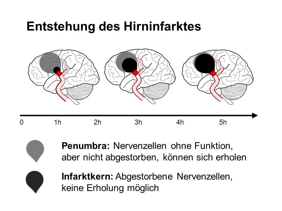 Entstehung des Hirninfarktes