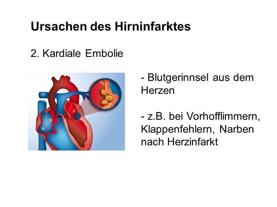 Ursachen des Hirninfarktes
