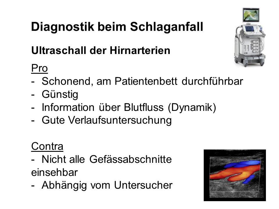 Diagnostik beim Schlaganfall