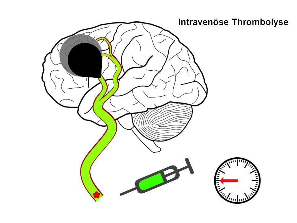 Intravenöse Thrombolyse