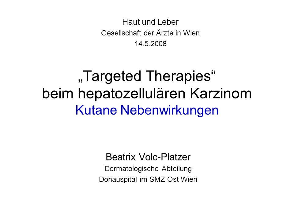 """Haut und Leber Gesellschaft der Ärzte in Wien. 14.5.2008. """"Targeted Therapies beim hepatozellulären Karzinom Kutane Nebenwirkungen."""