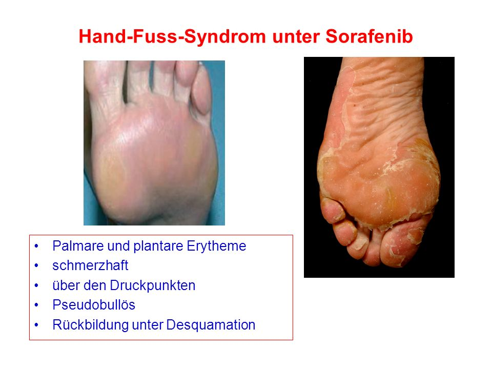 Hand-Fuss-Syndrom unter Sorafenib