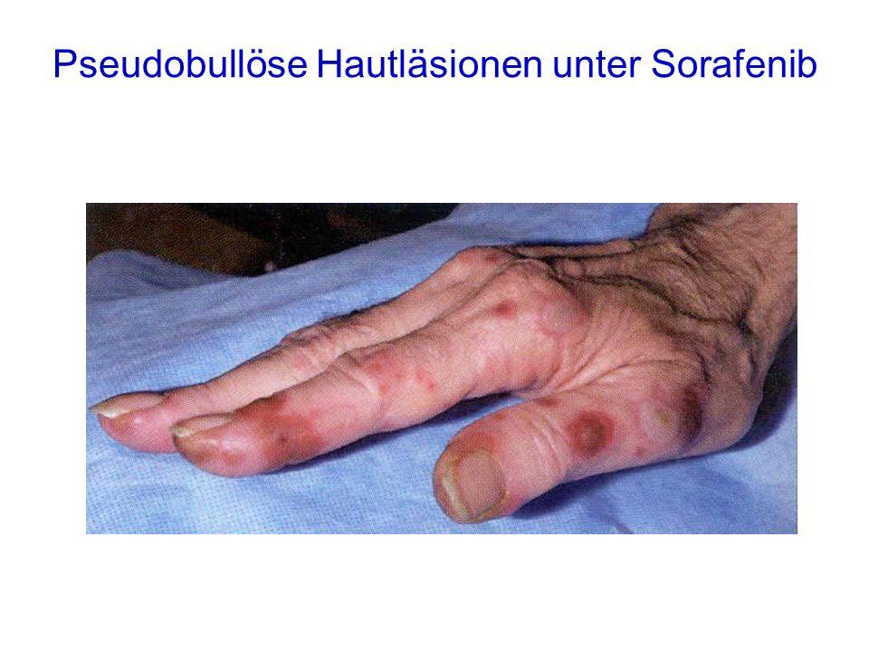 Pseudobullöse Hautläsionen unter Sorafenib
