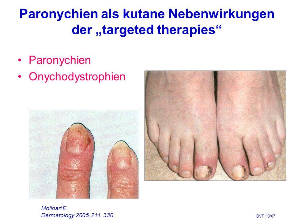 """Paronychien als kutane Nebenwirkungen der """"targeted therapies"""