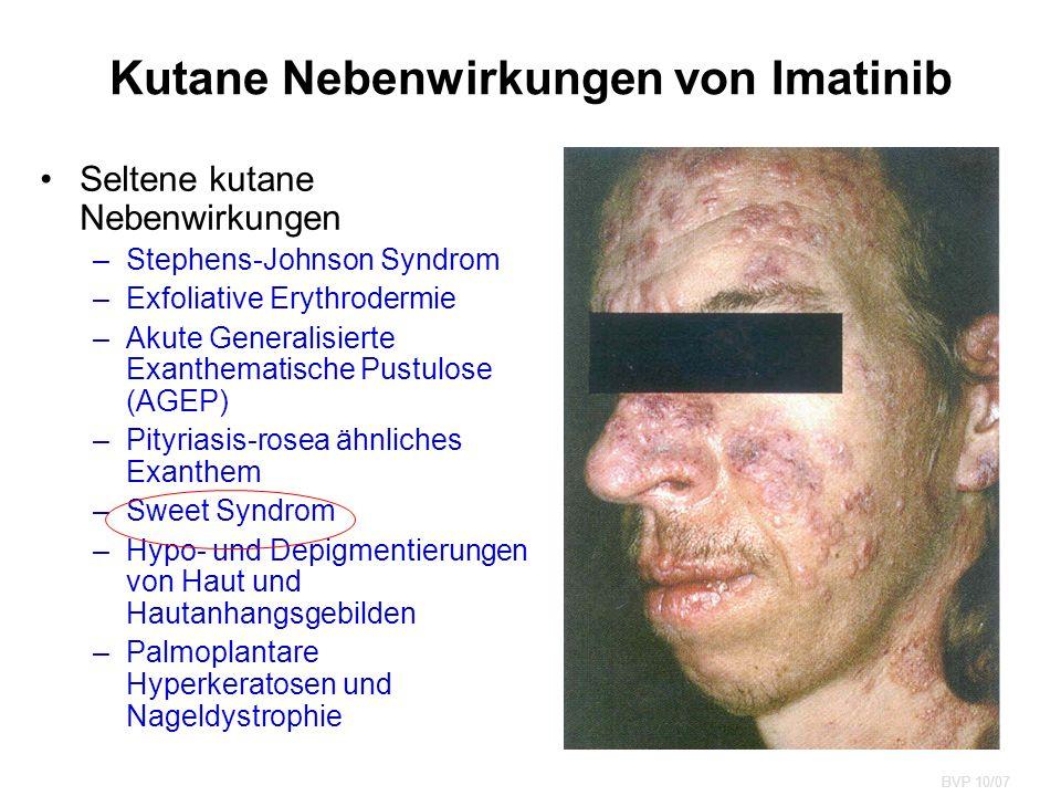Kutane Nebenwirkungen von Imatinib