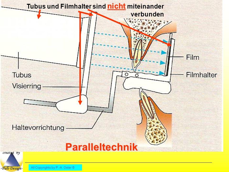 Paralleltechnik Tubus und Filmhalter sind nicht miteinander verbunden