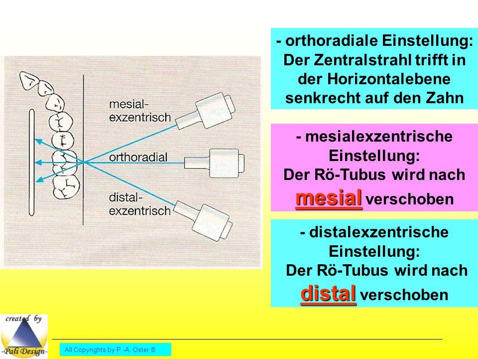 - orthoradiale Einstellung: Der Zentralstrahl trifft in der Horizontalebene senkrecht auf den Zahn