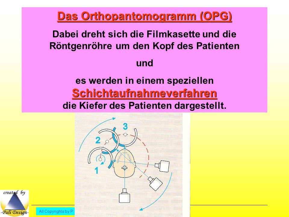Das Orthopantomogramm (OPG)