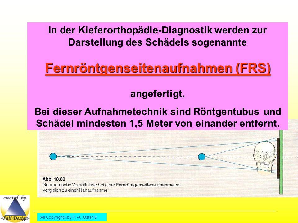 In der Kieferorthopädie-Diagnostik werden zur Darstellung des Schädels sogenannte Fernröntgenseitenaufnahmen (FRS) angefertigt.
