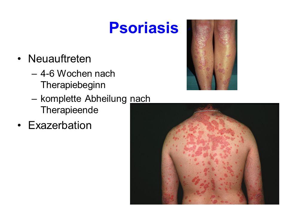 Psoriasis Neuauftreten Exazerbation 4-6 Wochen nach Therapiebeginn