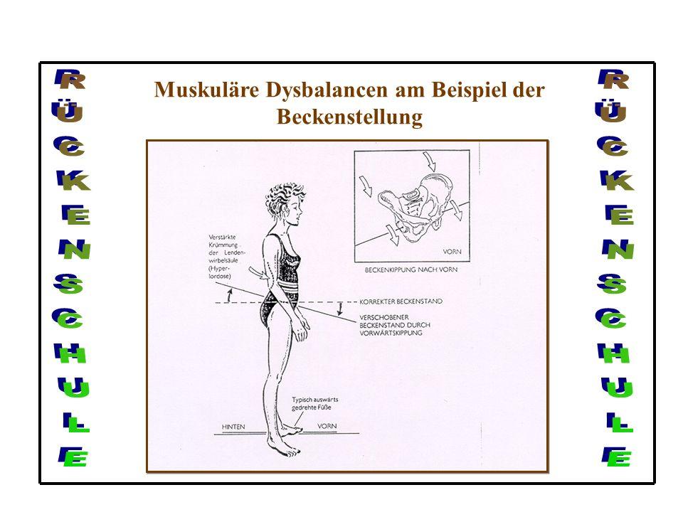 Muskuläre Dysbalancen am Beispiel der