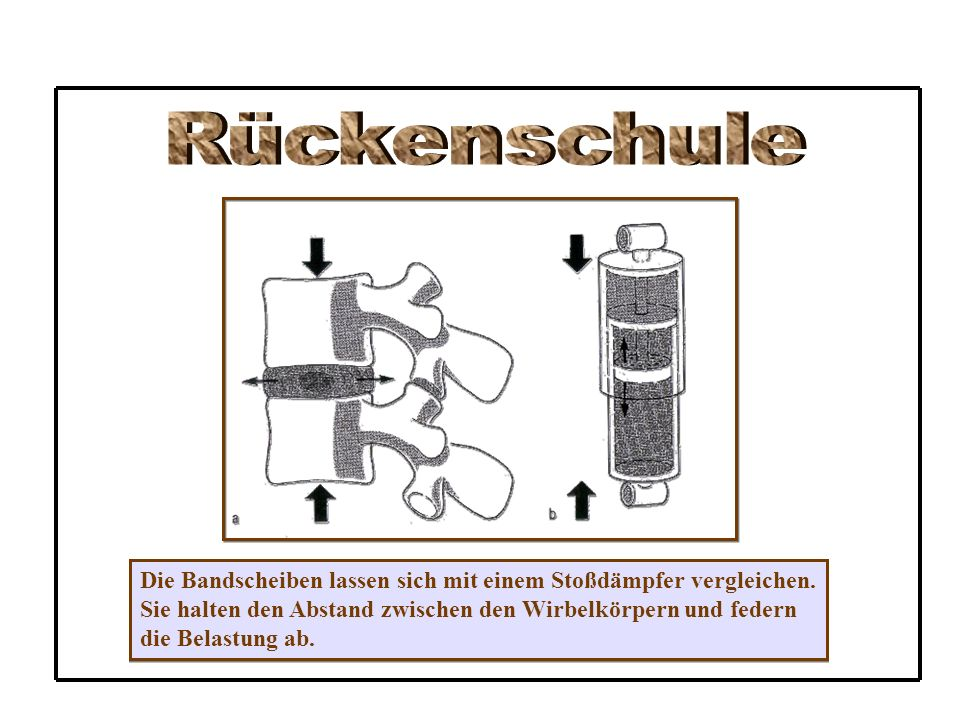 Rückenschule Die Bandscheiben lassen sich mit einem Stoßdämpfer vergleichen. Sie halten den Abstand zwischen den Wirbelkörpern und federn.