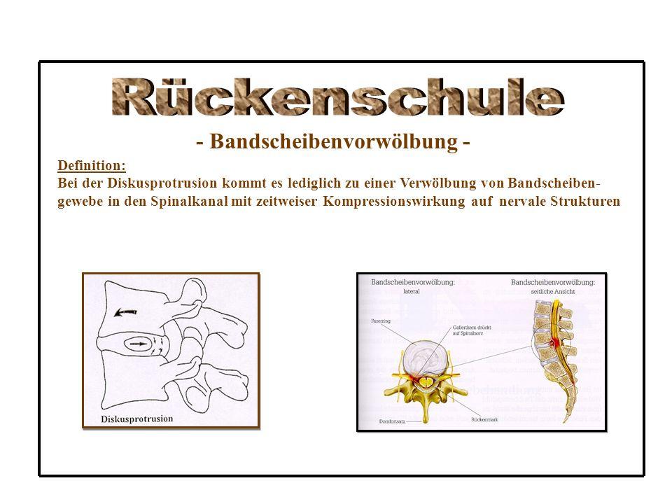 Rückenschule - Bandscheibenvorwölbung - Definition: