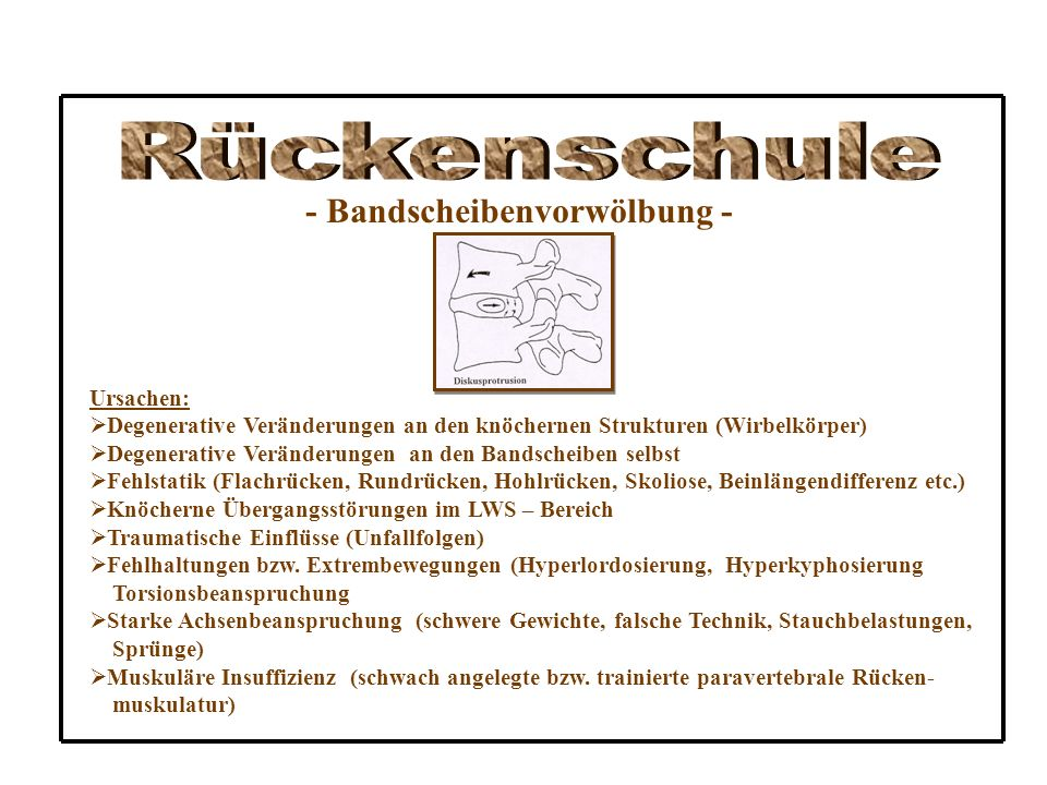 Rückenschule - Bandscheibenvorwölbung - Ursachen: