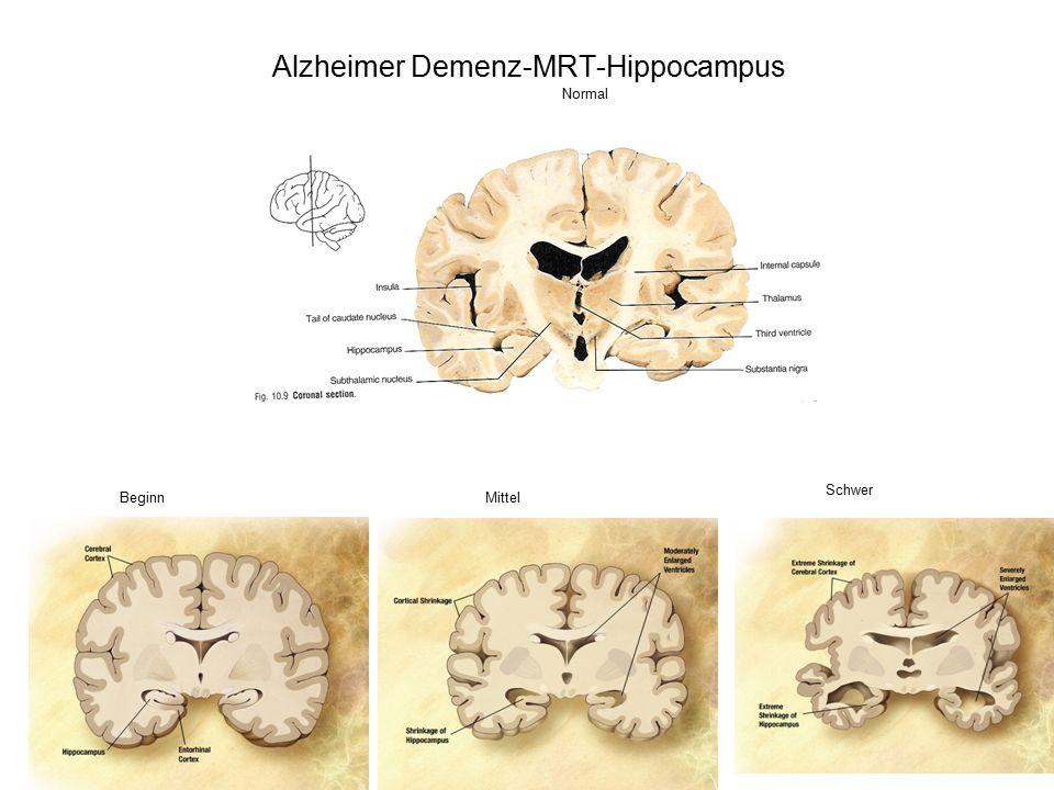 Alzheimer Demenz-MRT-Hippocampus