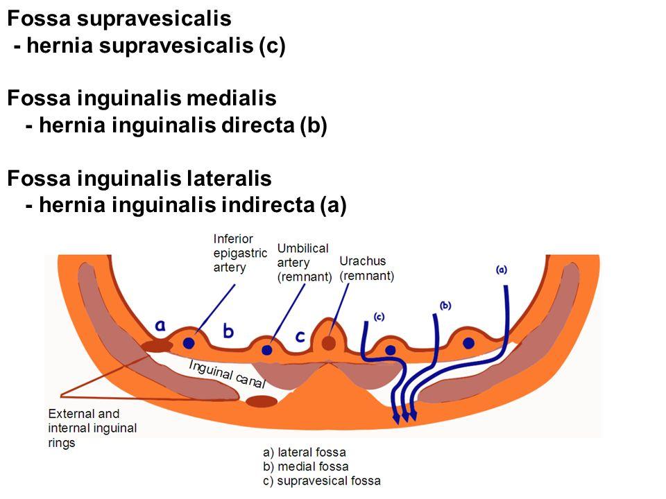 Fossa supravesicalis - hernia supravesicalis (c) Fossa inguinalis medialis. - hernia inguinalis directa (b)