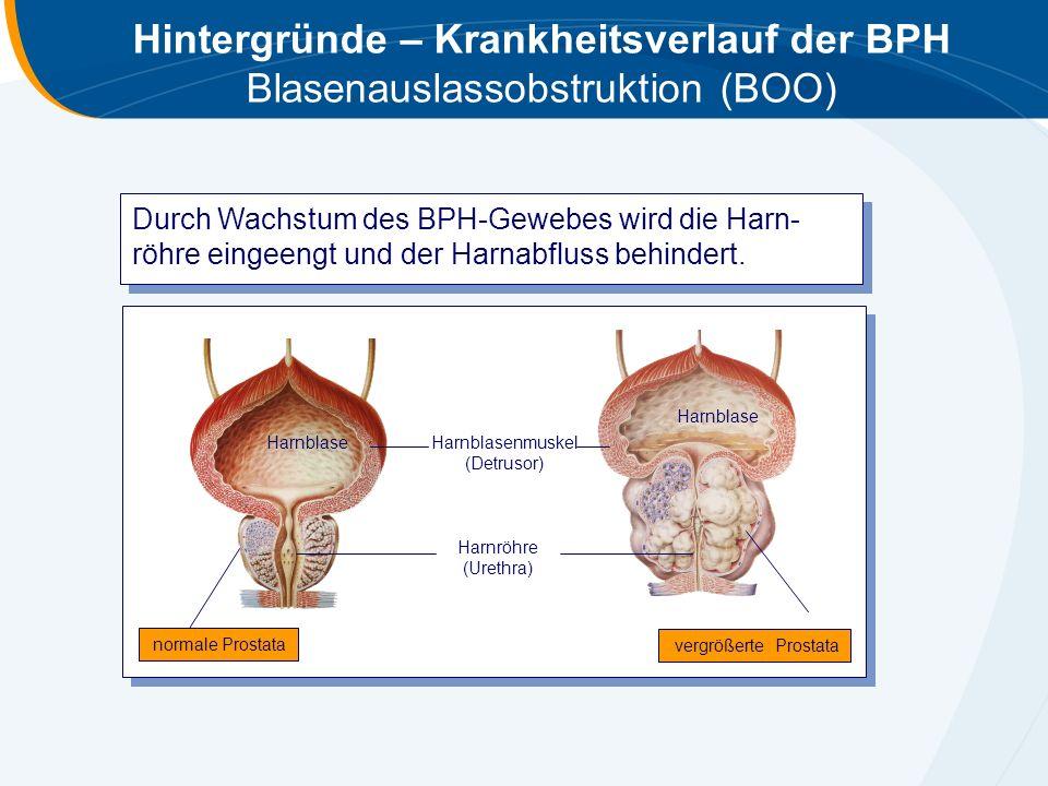 Hintergründe – Krankheitsverlauf der BPH Blasenauslassobstruktion (BOO)