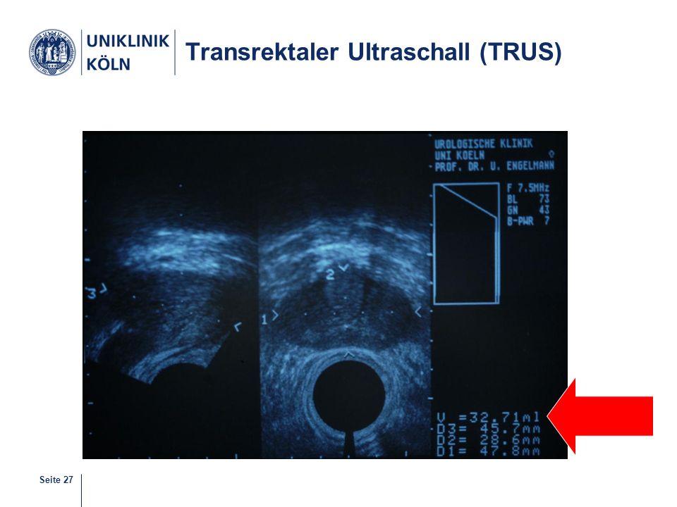 Transrektaler Ultraschall (TRUS)