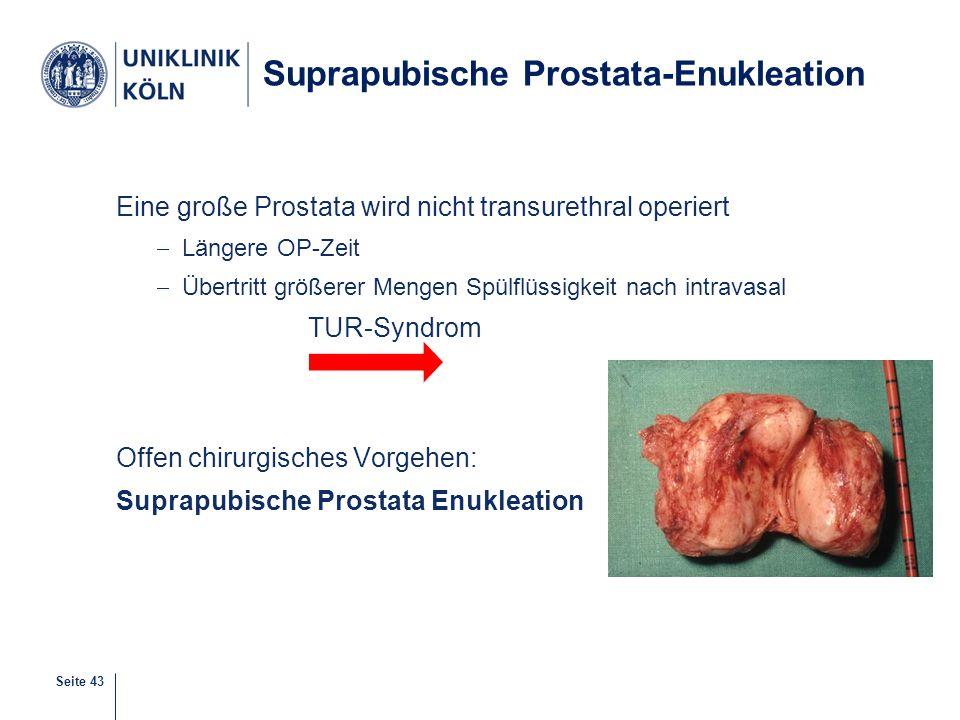 Suprapubische Prostata-Enukleation
