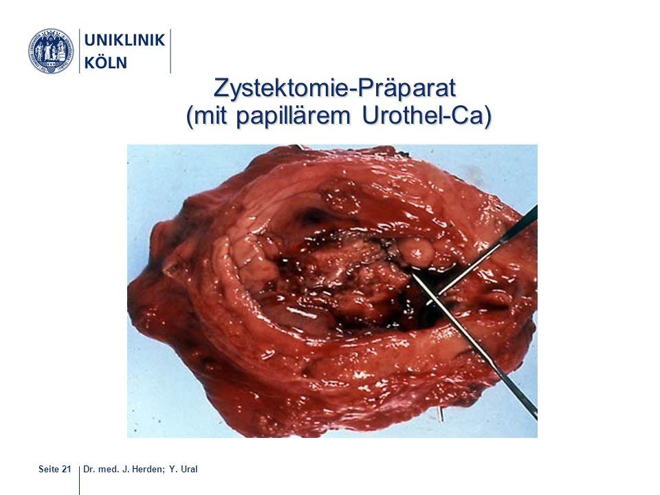 Zystektomie-Präparat (mit papillärem Urothel-Ca)