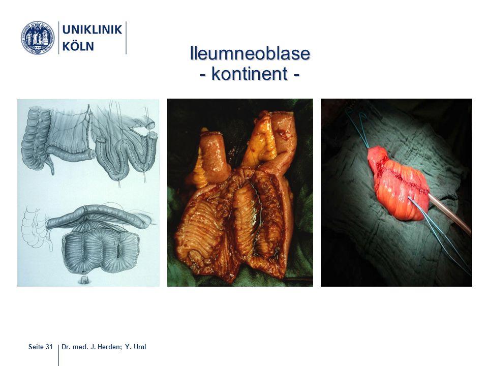 Ileumneoblase - kontinent - 32-40